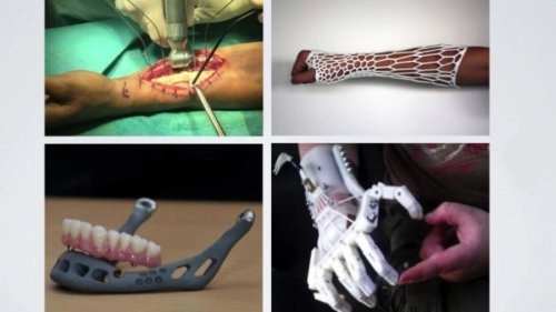 Yale's Center for Engineering and Innovation Design and Their Efforts to Make 3D Printed Organs